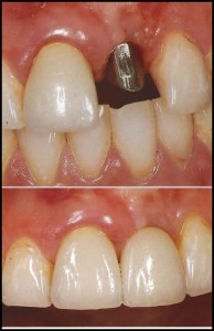 Implante Dental Incisivo Central